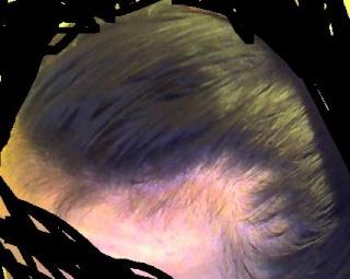 Le vitamine per capelli per ordinare viviscal